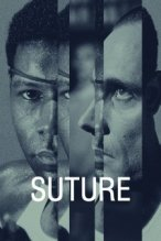 Suture poster